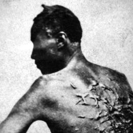 A slave, showing scars from recent whipping